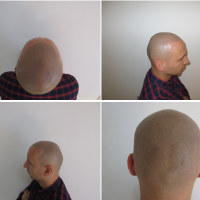 Have You Tried Scalp Micropigmentation