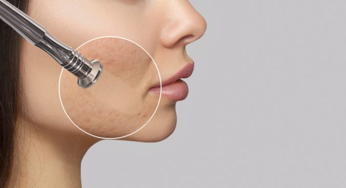 In order to achieve more flawless skin, both men and women often turn to microdermabrasion and dermaplaning. These procedures are done by an esthetician in conjunction or separately. Both procedures exfoliate and remove dead skin cells from the upper layer of the epidermis, known as the stratum corneum. The results of these procedures reduce the appearance of sun damage, wrinkles, fine lines, age spots, acne scarring, melasma, and other skin related conditions. The introduction of microdermabrasion and dermaplaning can safely be introduced as young as 12 and up to 65.